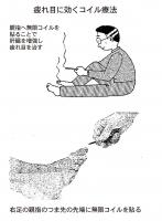 疲れ目に効くコイル療法.jpg